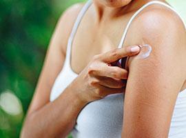 Una joven aplicando una loción para la comezón en una picadura de mosquito en el brazo.
