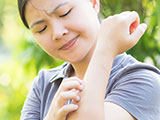A young woman scratching her arm outside from a mosquito bite.